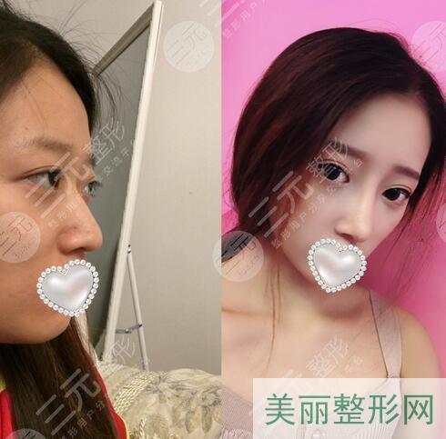 驼峰鼻矫正图片