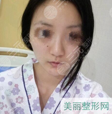隆鼻手术图片过程图片