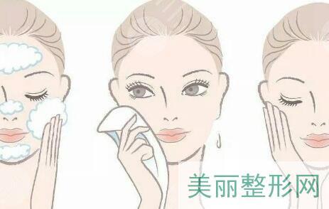 双眼皮全切多久能洗脸