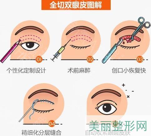 双眼皮全切手术多长时间