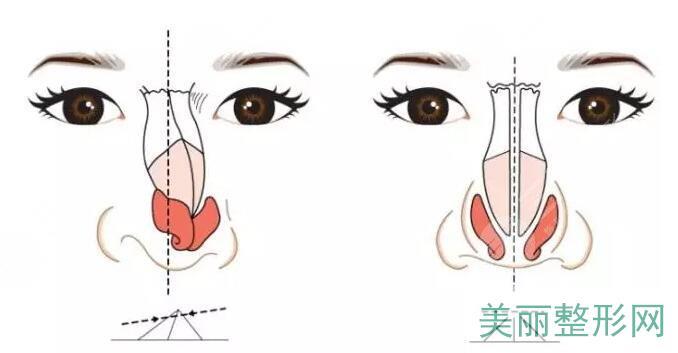 歪鼻矫正手术多少钱