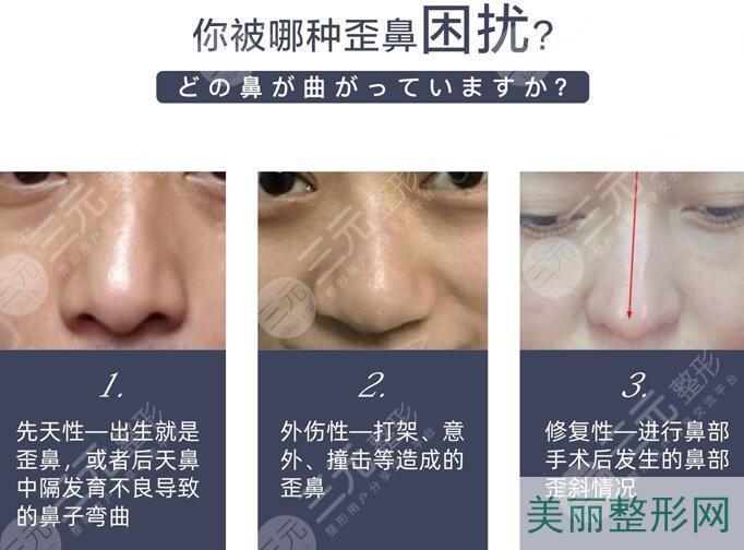 歪鼻的类型