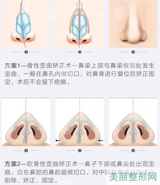歪鼻矫正的方法