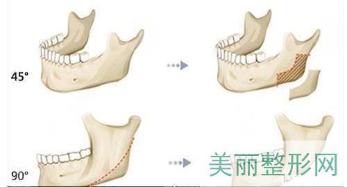 下颌角磨骨