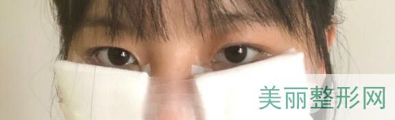 【去眼袋手术手术后】