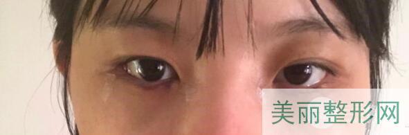 【去眼袋手术手术后恢复过程】