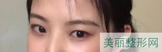 【去眼袋手术手术后恢复效果】
