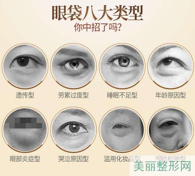 眼袋手术的价格是多少?