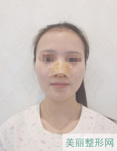 假体隆鼻效果术后2天