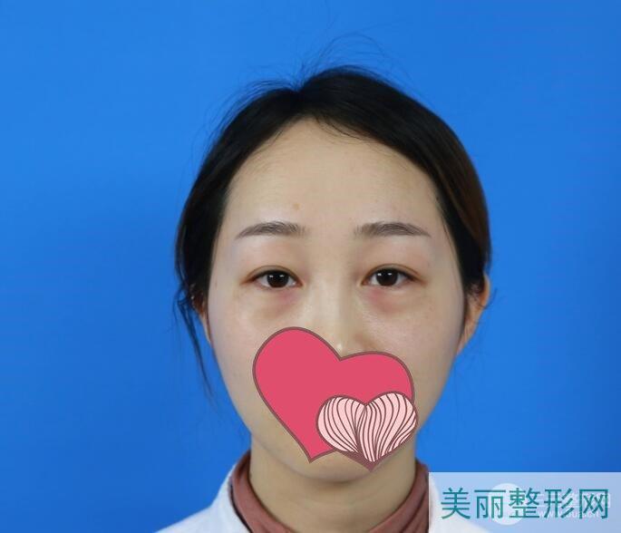 超声波去眼袋术前