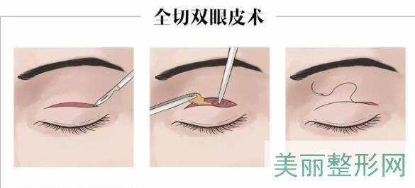 双眼皮(双眼皮手术)