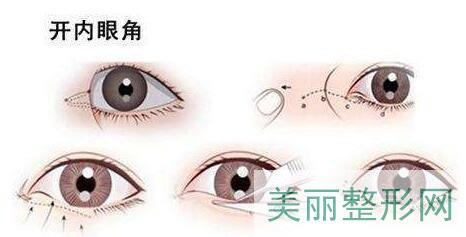 开眼角手术(内眦皮手术)
