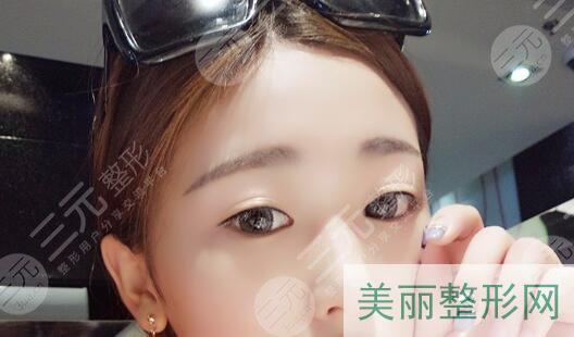 双眼皮手术案例反馈前