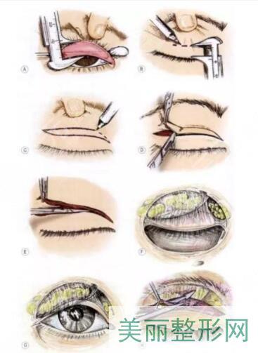 做双眼皮有几种方法哪种比较好?分类盘点