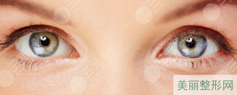双眼皮手术注意事项
