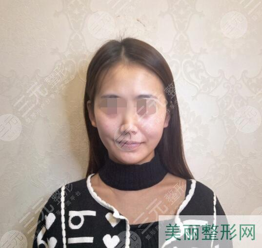 面部填充手术案例前