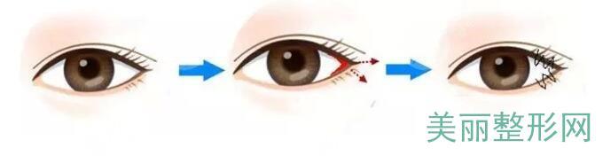 开眼角外眼角手术一般要注意哪些?