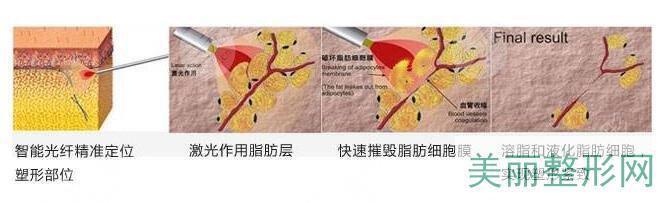 激光溶脂的副作用