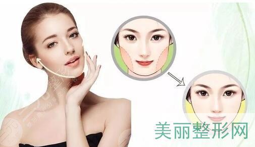 面部吸脂要如何避免松弛下垂?