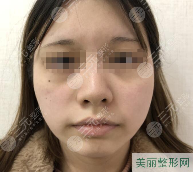 面部吸脂手术案例前