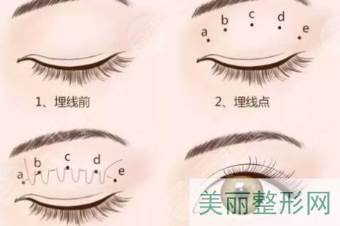 双眼皮手术类型