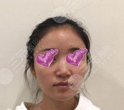上海九院整形隆鼻效果图