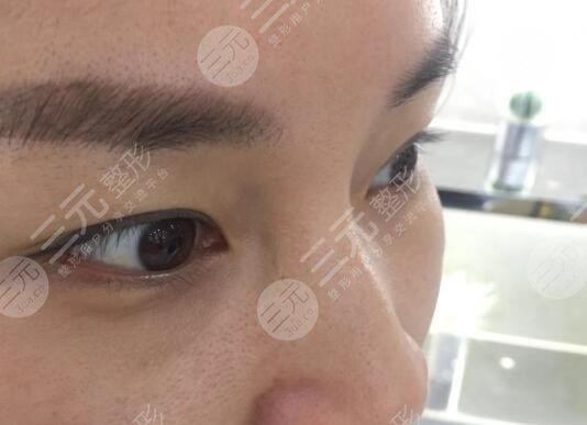 武汉同济医院整形美容外科去眼袋案例前