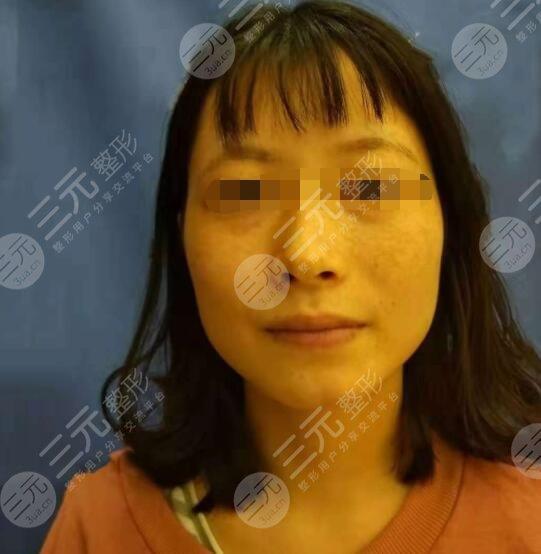 八大处整形外科医院激光美容科激光祛斑案例前