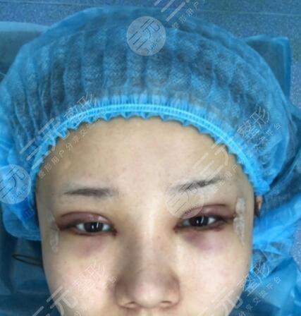 中国大一院双眼皮修复案例后即刻