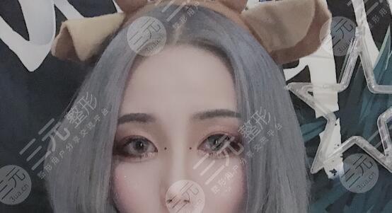 中国大一院双眼皮修复案例后4个月