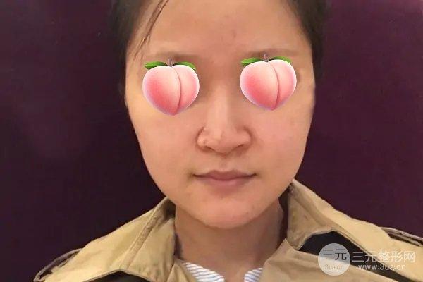 洛阳三院整形美容怎么样?让你拥有翘挺的鼻子!