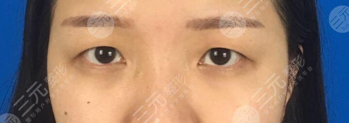 江苏省中医院双眼皮案例